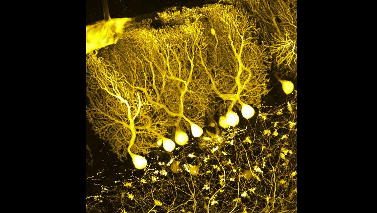 purkinje cells yellow