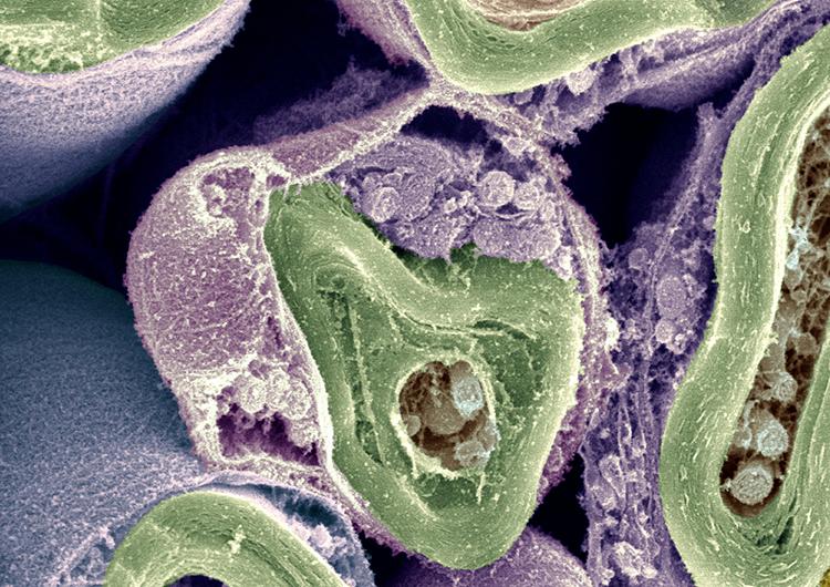 Image of Schwann Cells in purple