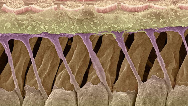 deiter cells purple