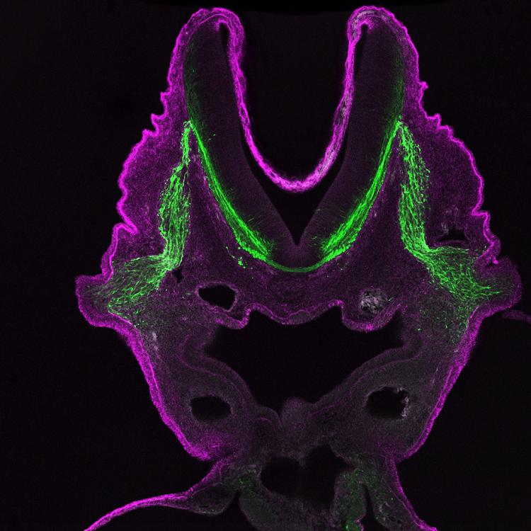 cranial ganglion purple and green