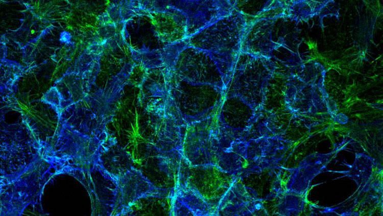 Cells showing serotonin transporter protein