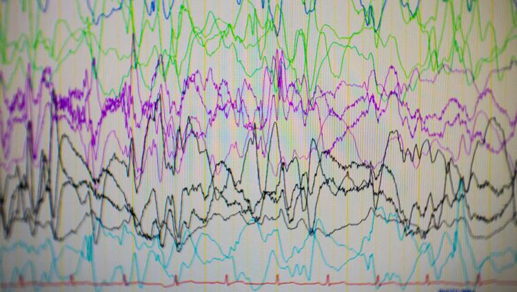Image of brain waves