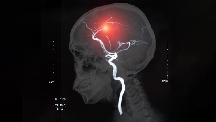 Image of stroke in a brain
