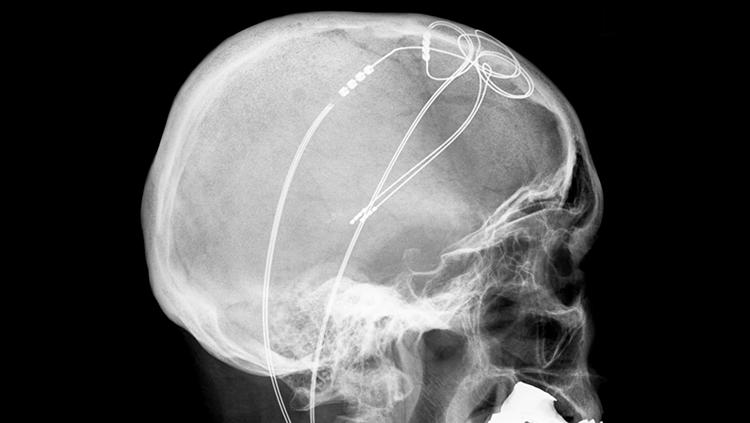 Image of a skull
