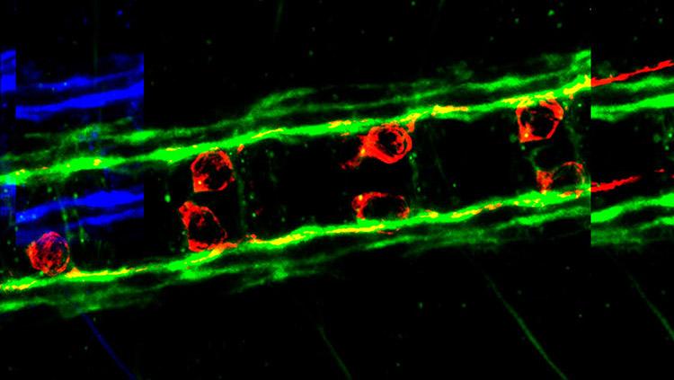 Image of pioneer cells